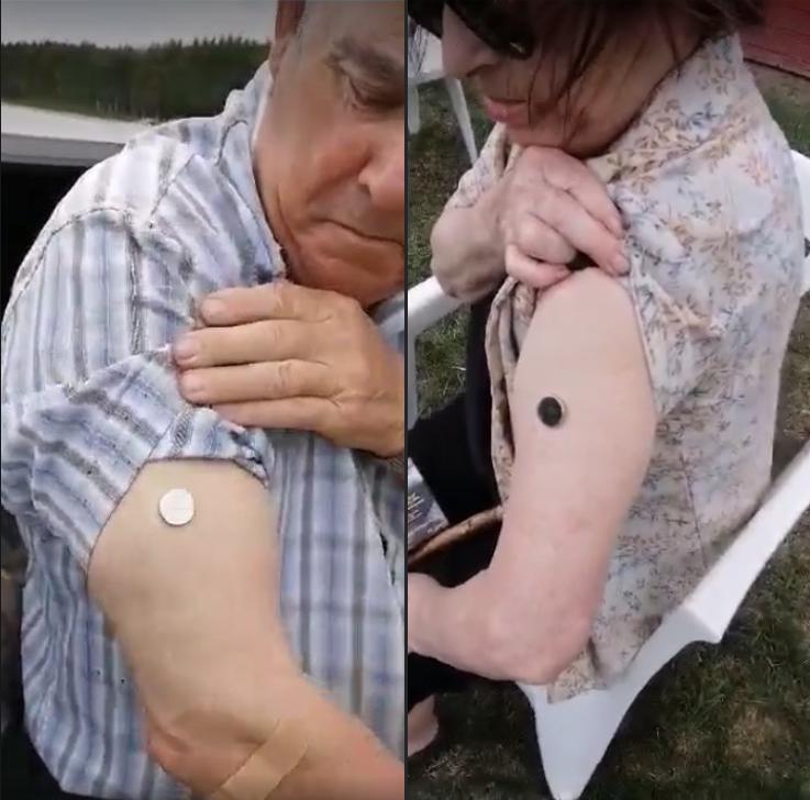 aimants sur le bras